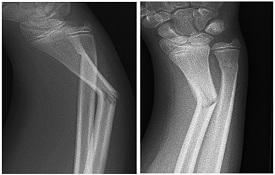 greenstick fracture